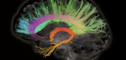 Macht is ongrijpbaar en tegelijkertijd heel concreet. Macht komt in allerlei gedaantes, en in allerlei gradaties. Maar waar begint macht nu precies? Welke fundamenten liggen aan al die processen ten grondslag? Recente inzichten in de neurowetenschap kunnen ons helpen die vragen te beantwoorden. Segment 1: Het reptielenbrein De neurowetenschap leert ons dat we de hersens grofweg kunnen indelen in drie segmenten. De basis van onze hersens wordt gevormd door de hersenstam, ook wel het 'reptielenbrein' genoemd. In dit (oudste) deel van de hersens zetelt ons instinct en onze wil om te overleven. Alles wat daarvoor nodig is, wordt aangewend: het reptielenbrein zorgt ervoor dat we eten, drinken, ons voortplanten en domineren. Segment 2: De neocortex Het buitenste deel van de hersens wordt gevormd door de neocortex, in onze evolutie de jongste laag van het brein. De neocortex is vooral verantwoordelijk voor het bewust verwerken van informatie en stelt ons in staat om rationeel te redeneren. Hoewel apen en dolfijnen ook een redelijk ontwikkelde neocortex hebben, is er geen diersoort die de mens hierin qua volume en capaciteit overtreft. Vandaar dat de neocortex ook wel 'het menselijk brein' genoemd wordt. De neocortex is de bakermat van onze intellectuele en creatieve vermogens. Hij bestaat uit een rechter- en een linkerhersenhelft. In de rechterhersenhelft zetelen onze creatieve capaciteiten: intuïtie, muzikaliteit, het vermogen schoonheid te creëren en herkennen, maar ook de capaciteit om vindingrijk te zijn en out of the box te denken. De linkerhersenhelft voorziet ons op zijn beurt van de capaciteiten om te analyseren, verbanden te zien en logisch te denken. Segment 3: Het limbisch brein Tussen het reptielenbrein en de neocortex in (ook qua ontwikkeling in de tijd) bevindt zich het limbisch brein. Dat deel van de hersens regelt ons gevoel en ons vermogen tot empathie. Het maakt dat we situaties kunnen aanvoelen en ons kunnen inleven in de ander. Het limbisch brein is bij
