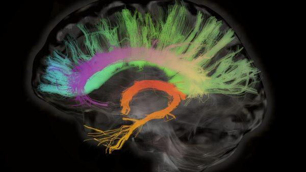 Brein, CEO-brein, managersbrein, leidinggeven, leidinggevende, manager, leiderschap